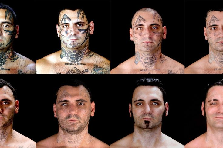 laser tattoo removal prices #tattooremovallaser
