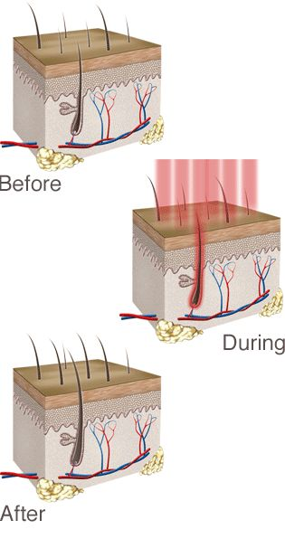 igrow laser - Low Level Laser Therapy (LLLT) for Hair Regrowth