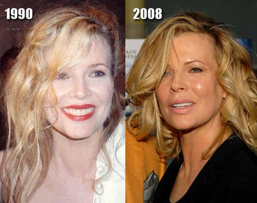 Kim Basinger Before And After Plastic Surgery | Cosmetic Plastic Surgery