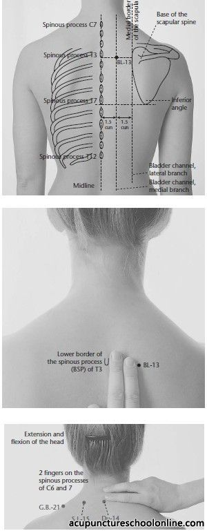 Repinned http://www.medischeqigong.com/ http://www.academ.nl/ #acupuncture