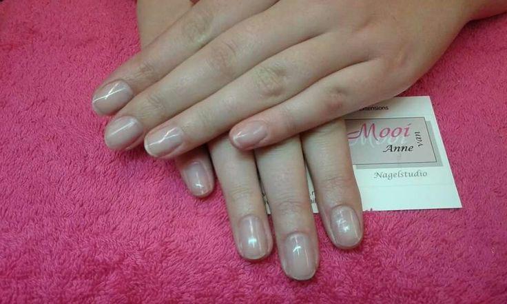 Natuurlijke nagels na het verwijderen van acrylnagels.