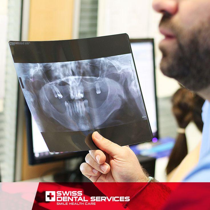 Chez Swiss Dental Services, vous trouverez des professionnels ayant une vaste expérience dans les traitements avancés de Réhabilitation Orale, prêts à vous faire sourire !  Il vous suffit de prendre un rendez-vous pour une évaluation  www.swissdentalservices.com/fr