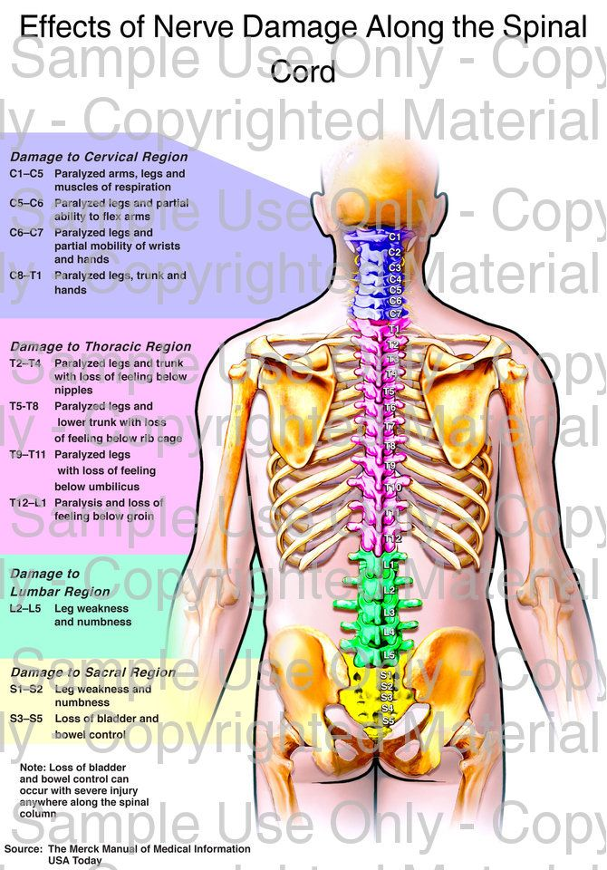58 besten Spinal cord injury Bilder auf Pinterest | Hilfstechnologie ...