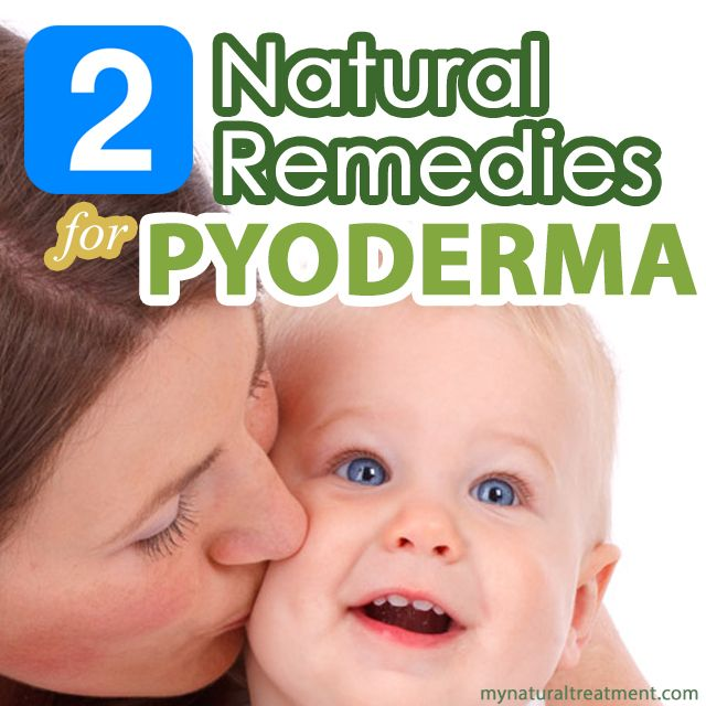 Here you have the most amazing natural remedies for pyoderma with danewort cataplasms and methylene blue compress that actually work! #pyoderma #pyodermaremedy