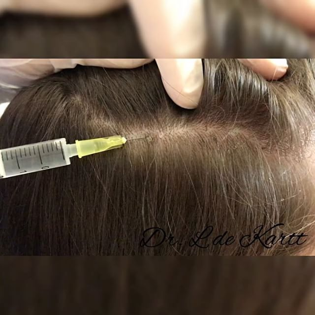 Мезотерапия волосистой части головы.  Целью процедуры являются: ��Остановить выпадение волос. ��Продлить фазу активного роста и развития. ��Снабдить волосяные фолликулы всем необходимым питанием. ��Восстановить утраченные функции кожи волосистой части головы. ��Укрепить волосы и увеличить их густоту. ��Стимулировать кровоснабжение волосяных фолликул, чтобы появилась возможность роста новых волос. ��Нормализовать функции сальных желез кожи головы. #врачкосметолог #cosmetology #мезотерапия…