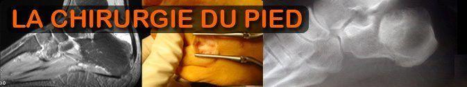 Chirurgie-du-Pied.fr
