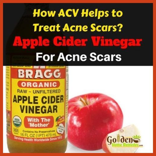 Homemade Acne Treatment - Adult Acne - Reasons and Treatments ** More info could be found at the image url. #black