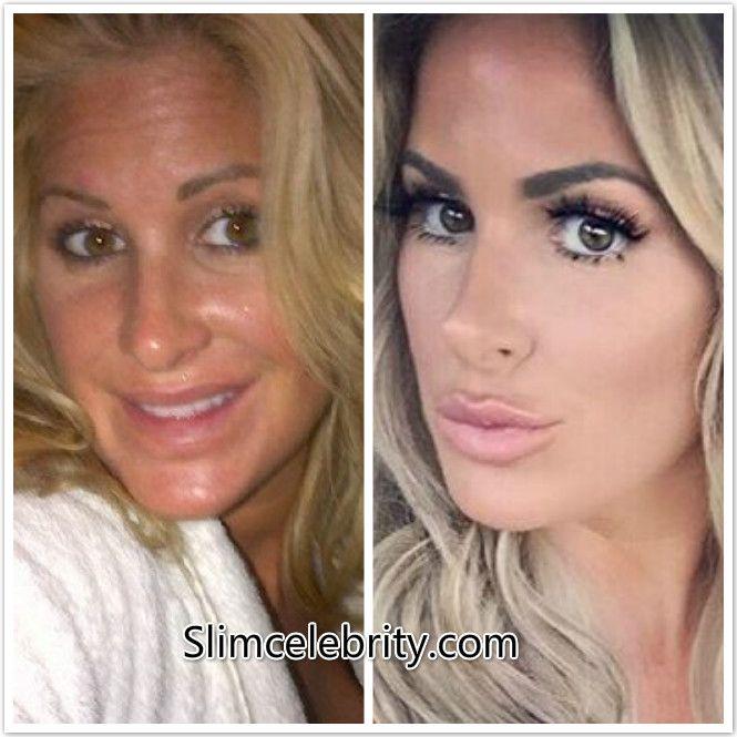 Nicole Kidman before/after plastic surgery / lip ...