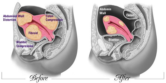 Uterine Fibroids Symptoms | Clinical signs and symptoms : Typically asymptomatic Large cysts ...