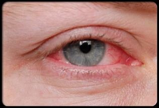 Treating red eyes really is easy, more often than not the cause is exhaustion, allergic reactions or discomfort. If all else is not able you will need to get specialist, red eyes are usually a short-term issue.