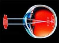 Myopia or Nearsightedness is a condition when the distance between the cornea and the retina is too long or the actual shape of the cornea or clear window of the eye is too steep. This causes light images to focus in front of the retina, causing blurry vision in the distance. http://arizonacataract.com/eye-problems/refractive-errors/myopia-nearsightedness/