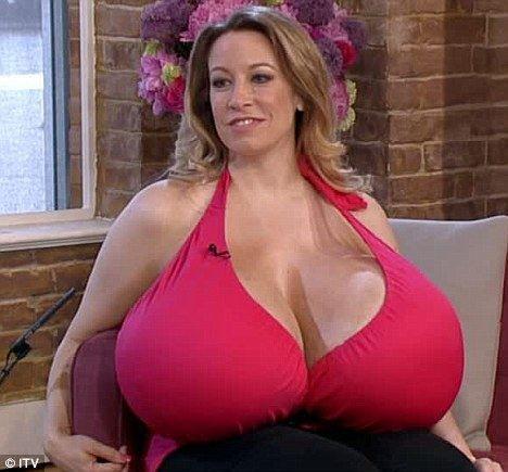 Extreme plastic surgery - size 164XXX breast implants: - THE ORIGINAL NUT BAG!