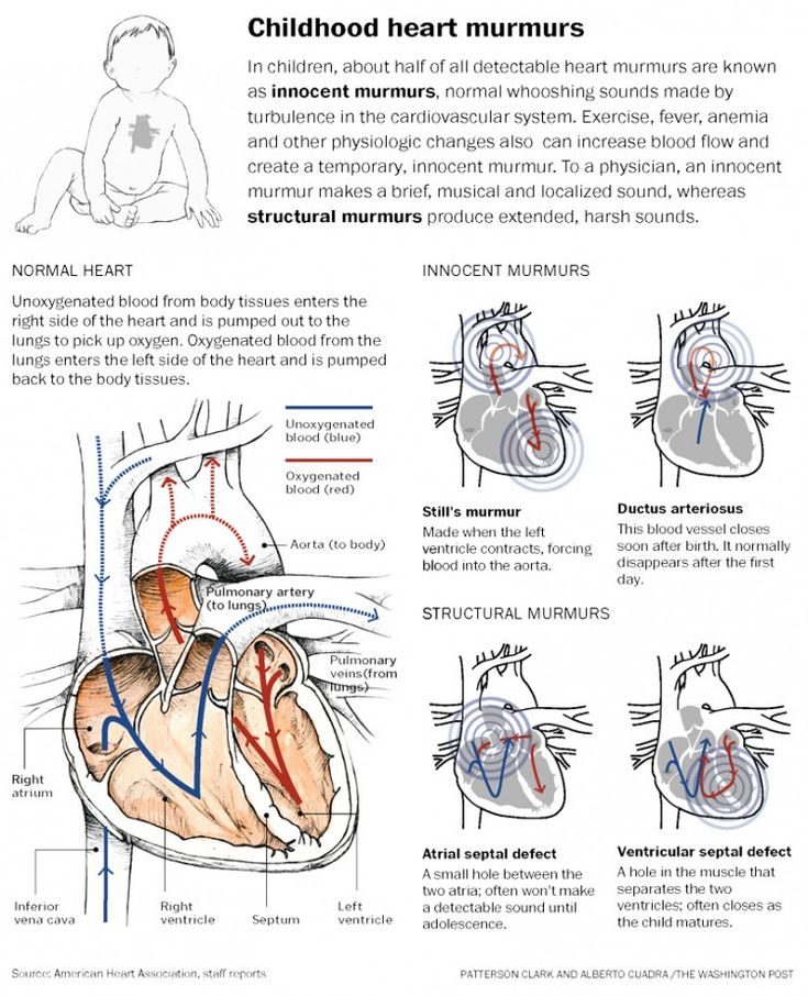 Childhood Heart murmurs  Mine is the PDA, and Absent Left PA