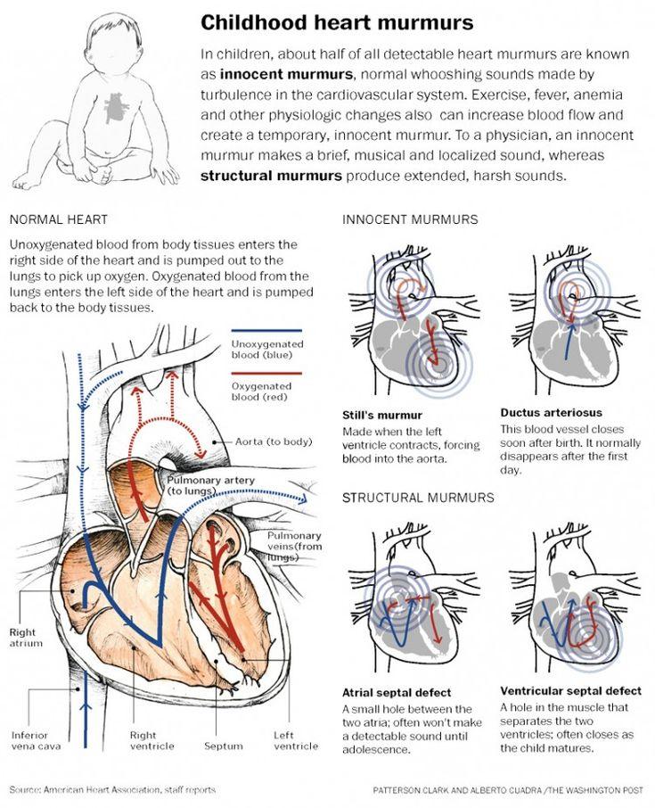 Childhood Heart murmurs ~ http://ventriculartachycardiatreatment.com/Ventricular-tachycardia-treatment/12-ways-to-calm-a-fast-heartbeat.html
