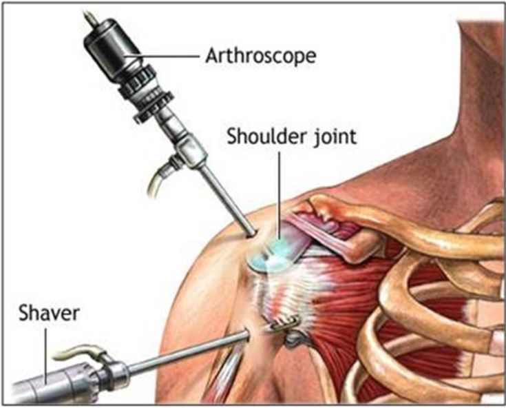 Shoulder Impingement Surgery | Do you need surgery?