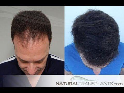 Pin By Hair Transplants Orlando On Hairtransplantsorlando Hair