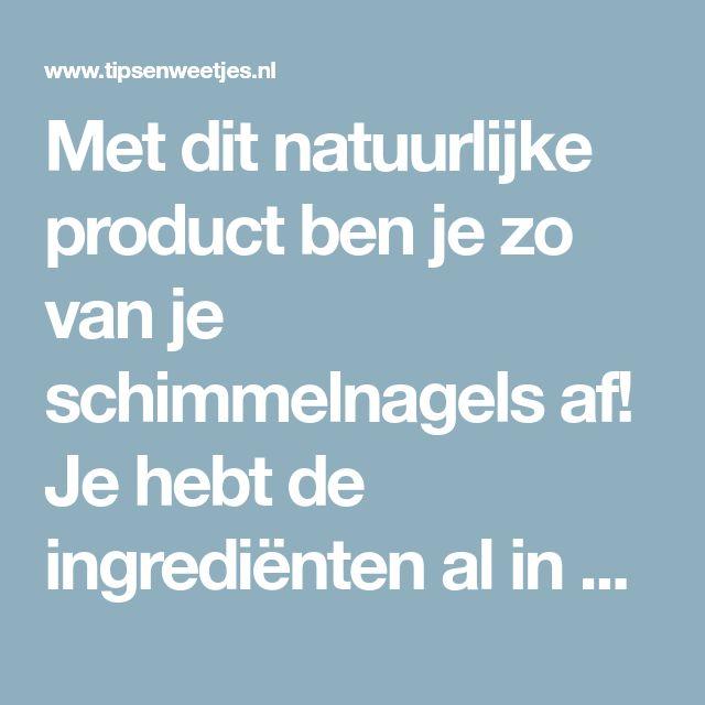 Met dit natuurlijke product ben je zo van je schimmelnagels af! Je hebt de ingrediënten al in huis!