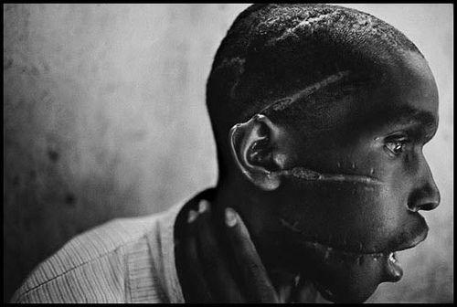 James Nachtwey, Rwanda genocide survivor, 1994