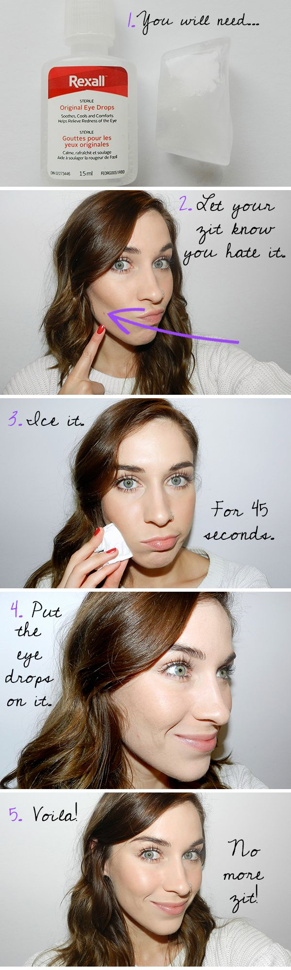 Beauty Emergency: How to Get Rid of a Pimple FAST! - Beauty Funk