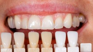 Porcelain Veneers Cost in Sydney And What To Expect