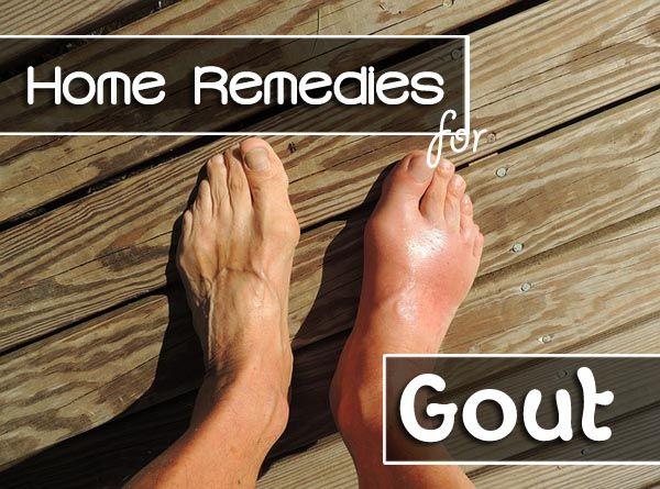 55 Best Gout Images On Pinterest Natural Remedies