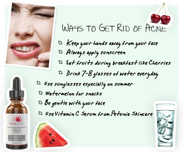 how to get rid by natural ways from acne marks