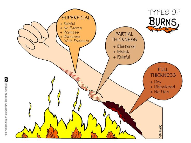 Types of Burns There are three different kinds of burns. They are classified by how severely the skin is burned. The three types of burns are superficial burn, partial thickness burn, and full thickness burn.
