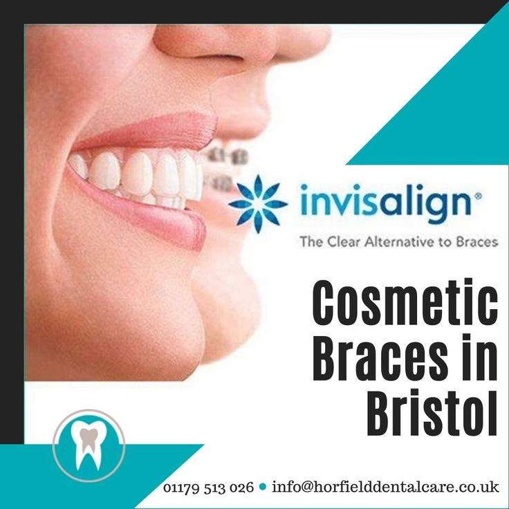 Invisalign is one of most alternative option