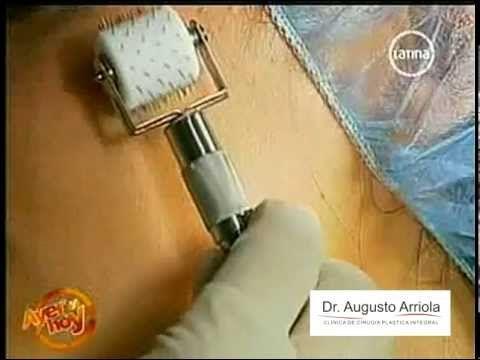 Como eliminar estrías / Marcas de acné en la cara - Dr. Augusto Arriola - http://solucionparaelacne.org/blog/como-eliminar-estrias-marcas-de-acne-en-la-cara-dr-augusto-arriola/