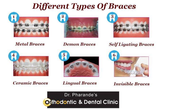 Different Types of #Braces #MetalBraces #DemonBraces #SelfligatingBraces #CeramicBraces #LingualBraces #Invisiblebraces