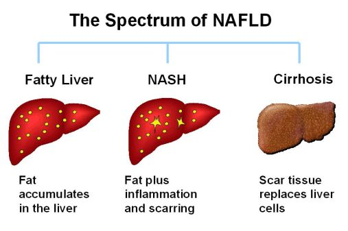 living with non alcoholic fatty liver disease