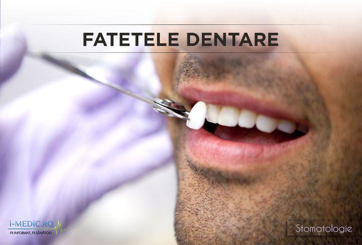 Fatele dentare sunt folosite pentru corectarea defectelor de la nivelul dintilor sau a modului in care acestea se imbina. http://www.i-medic.ro/stomatologie/fatetele-dentare