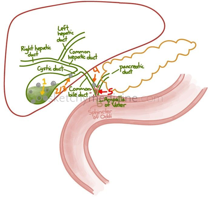 Can you send me a example of a term paper about gall bladder disease?