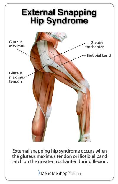 External snapping hip syndrome occurs when the IT band or gluteus maximus tendon catch on the greater trochanter.
