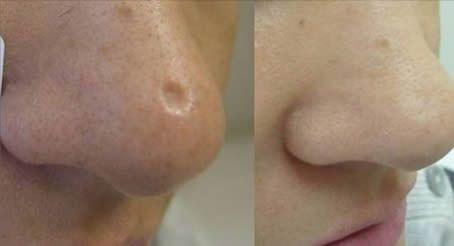 Eliminare le cicatrici può costare molti soldi. Per fortuna esistono numerosi ingredienti naturali, come il [Leggi Tutto...]