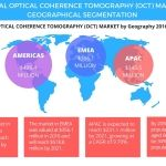 The Americas Dominates the Global Optical Coherence Tomography Market With 50% Market Share: Technavio