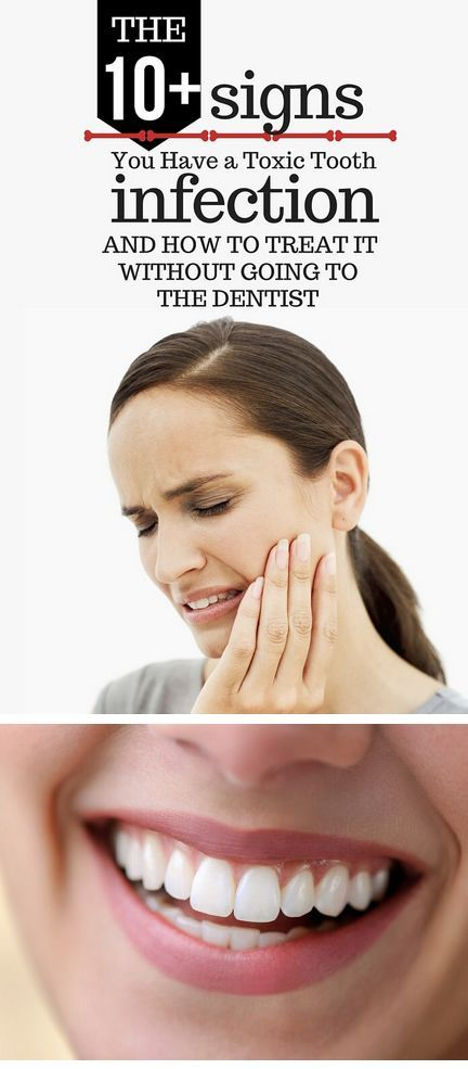 10+ Signs You Have a Toxic Tooth Infection and How to Treat it Without Going to the Dentist