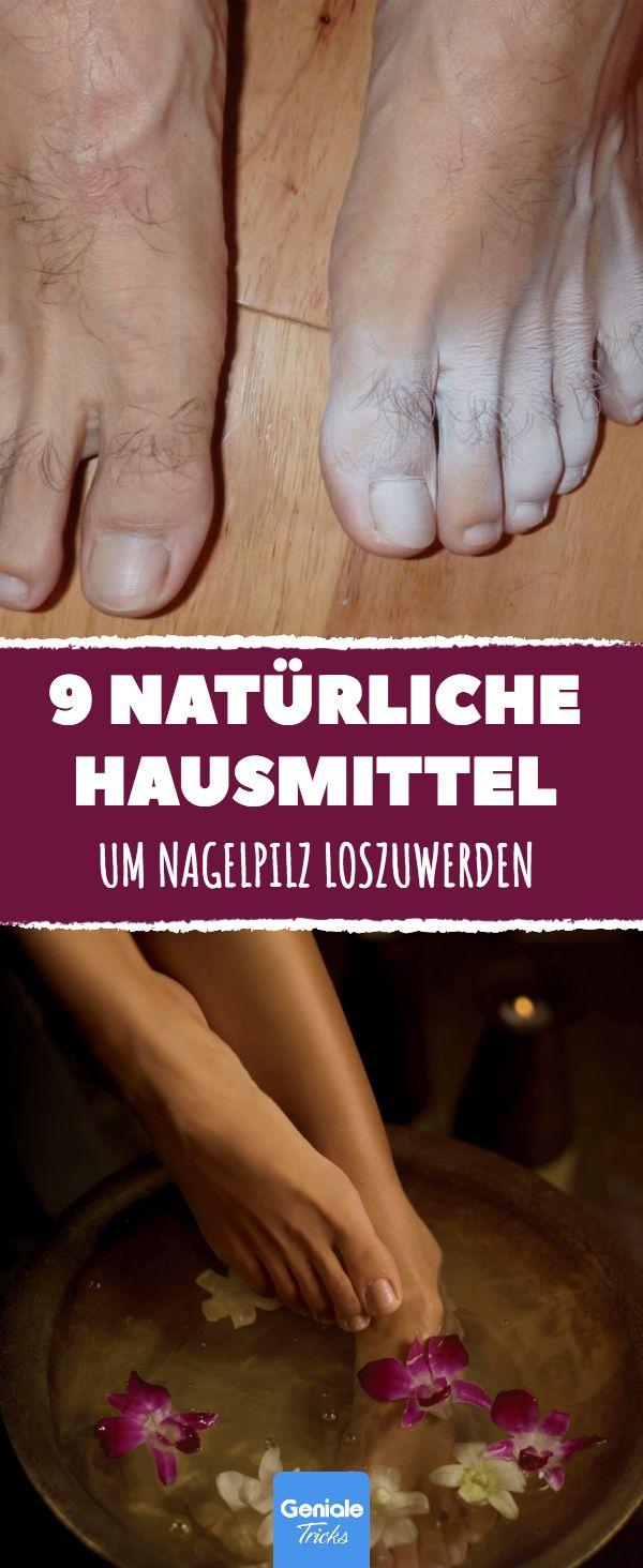 9 natürliche Wege, Nagelpilz loszuwerden.