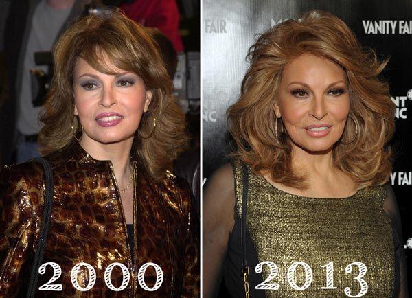 Has Raquel Welch Had Plastic Surgery Http