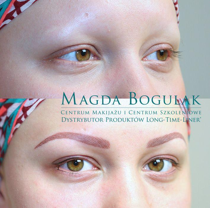 Pigmentacja medyczna brwi u osoby chorej na alopecję.