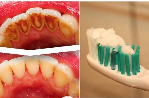 How to Remove Tartar, Clean Plaque and Destroy Bacteria With Only One Ingredient!, The oral health section of most stores can be overwhelming with the selection