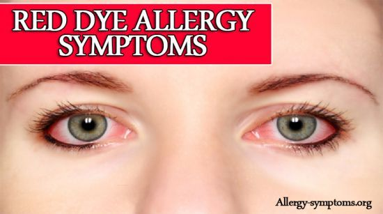Red Dye Allergy Symptoms, Causes and Treatment  Without your knowledge you're consuming many artificial or chemical food colors. That alluring food that you love may actually contain some harmful ingredients. Red dye is one of the common food dye color used in various products.  http://allergy-symptoms.org/red-dye-allergy-symptoms/