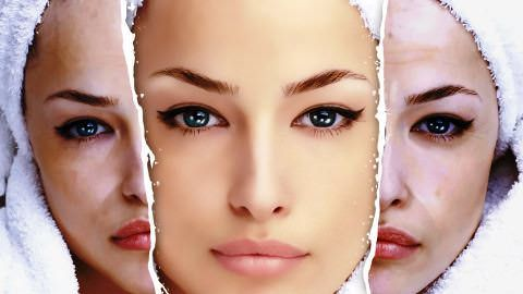 пилинг лица гликолевой кислотой
