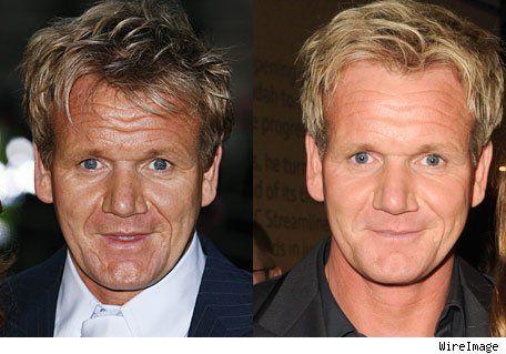 Celebrity gordon ramsay botox - http://www.surgeryafter ...  Gordon Ramsay Botox