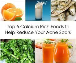 anti acne food with calcium