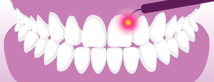 [Mi előzi meg a lézeres fogászati kezelést?] -------------------------------------------------------- 👨🍒⭐A lézeres fogászati kezelés elvégezhetőségének egyik legfontosabb kritériuma egy  tiszta és egyértelmű kép a fogaid állapotáról.🍇🌀 A pontos röntgen illetve CT kép nélkülözhetetlen a precíz, és biztonságos, komplikáció mentes kezelési tervhez.✌💞✅ ✴Tudj meg többet a lézerkezelésekről ITT!👉 http://www.lezerfogklinika.hu/lezerkezelesekrol/lezerkezelesek-garanciaja/ #lézer #fogászat…