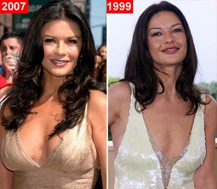 catherine-zeta-jones-breast-implants1-e1425653039792.jpg (430×375)