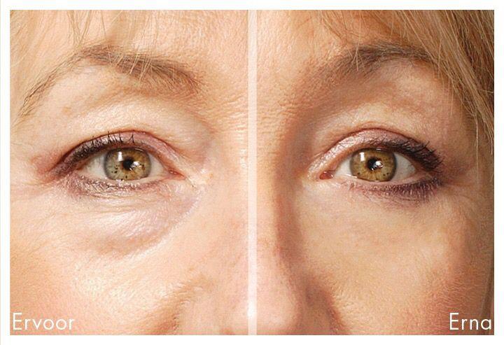 """Verwijderen van Wallen onder de ogen zonder operatie . Het kan echt met de eyesential.   Eyesential is een speciaal ontwikkelde cosmetische """"quick fix"""" die de lijntjes, wallen, donkere kringen en rimpels rond de ogen doet verdwijnen in slechts enkele minuten. Professionele make-up artists in Hollywood gebruikten het al 30 jaar, maar nu is het ook voor thuisgebruik ontwikkeld.  Beautyvit Huidverbetering  Dreef 10 4813eg Breda 0765223838 Info@beautyvit.nl Www.beautyvit.nl"""