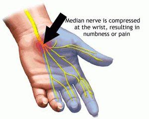 Three EO Pain Blends - arthritis, carpal tunnel, neuropathy For my mom