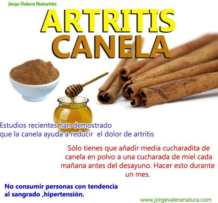 ARTRITIS:LA CANELA AYUDA A ALIVIAR LOS DOLORES